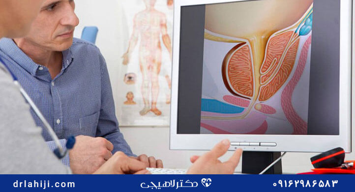پیشگیری از سرطان پروستات در جوانان