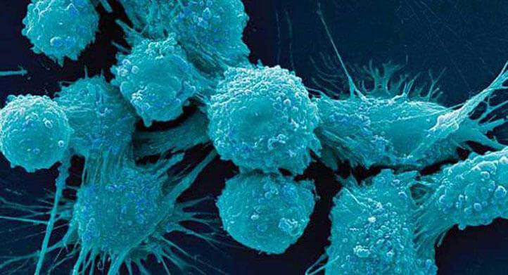 دلایل سرطان پروستات
