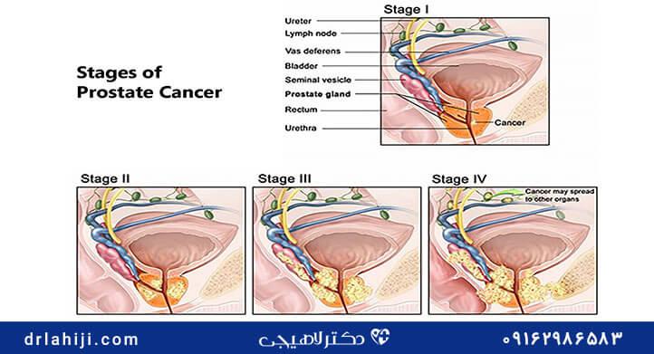 سرطان پروستات و گرید بندی آن