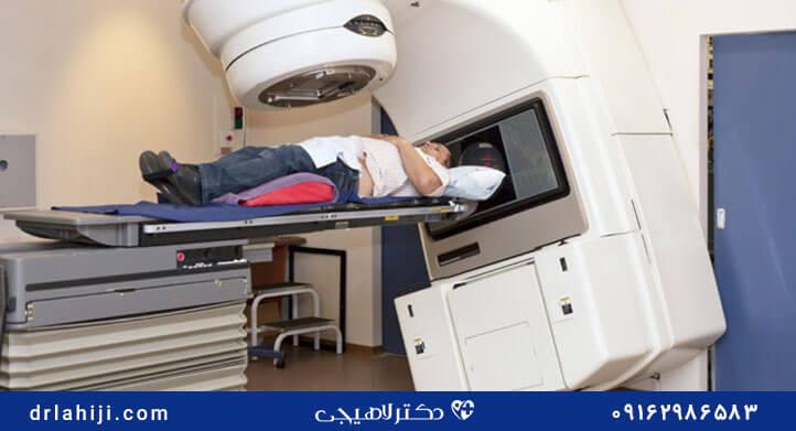 پرتو درمانی برای سرطان پروستات بدخیم