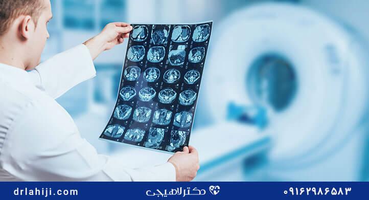 رادیولوژی برای سرطان پروستات
